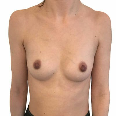 borstvergroting-breast augmentation